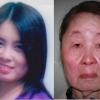 恐怖の病 たった1年で20代の美女妻が老婆のような顔に